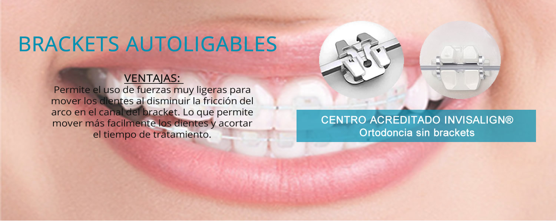 Ortodoncia invisalign. Brackets Autoligables, clínica Aymerich en Manresa