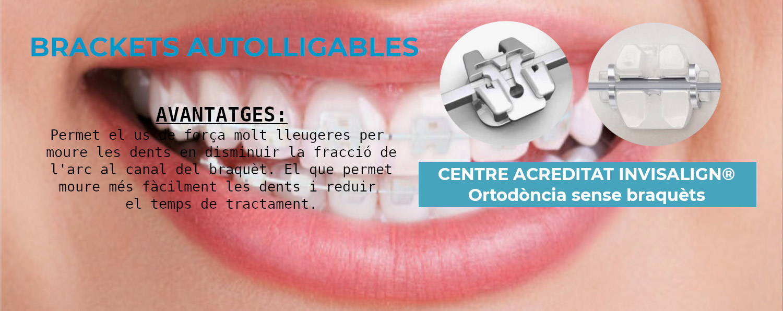 Brackets Autoligables, clínica Aymerich a Manresa