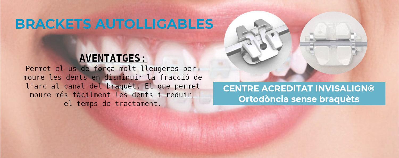 Braquets autolligables Clínica Dental Aymerich