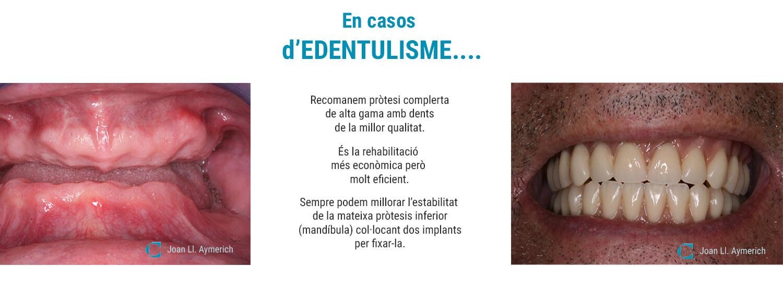 D'Edentulisme tenim tractament, Clínica Aymerich