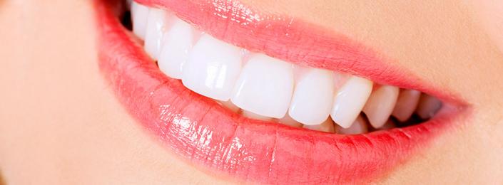 Tractament de blanquejaments dental, clínica dental Aymerich