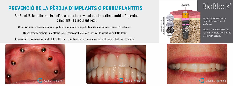Implants dentals a Clínica Dental Aymerich