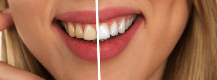Blanqueamiento dental Dental Aymerich