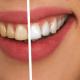 Blanquejament dental Dental Aymerich