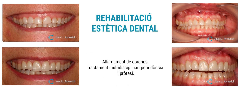 Rehabilitació estètica dental, clínica dental Aymerich