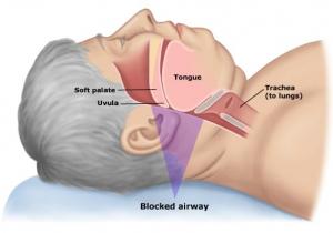 Ronc i apnea del son moderada, tractament a clínica dental Aymerich