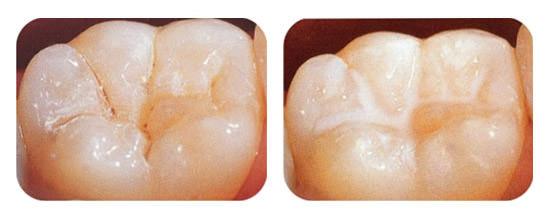 Odontopediatria sellado clínica dental Aymerich Manresa