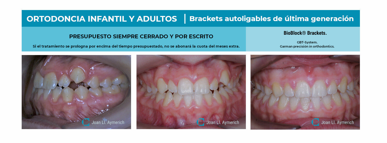 Ortodoncia infantil adulta brackets, Clinica Aymerich