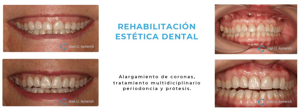 Tratamiento periodoncia dental en Manresa. Rehabilitación Coronas Estetica Dental Aymercih