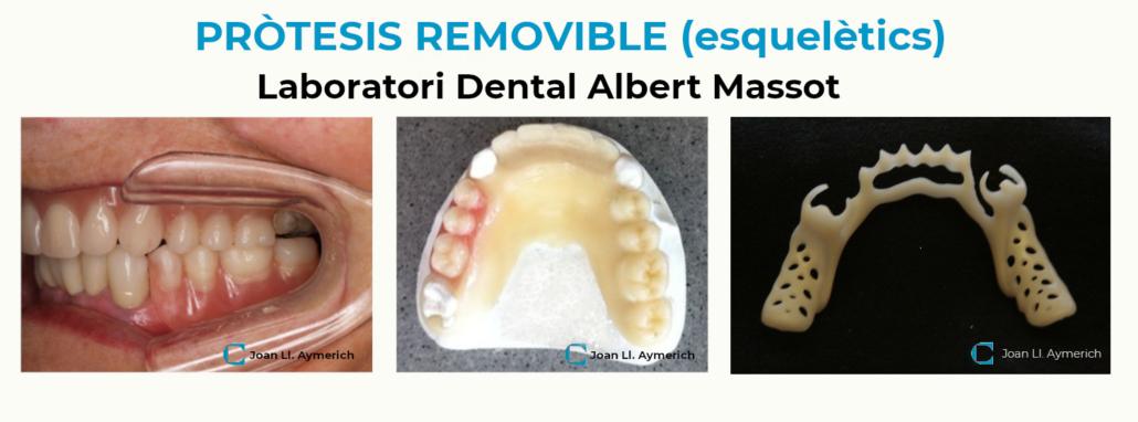 Tractament dental pròtesis removible, Aymerich
